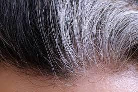 anti-grey-treatment-navod-na-pouzitie-ako-pouziva-davkovanie-recenzia