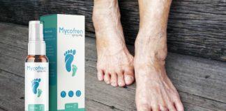 mycofren-spray-ako-pouziva-davkovanie-navod-na-pouzitie-recenzia