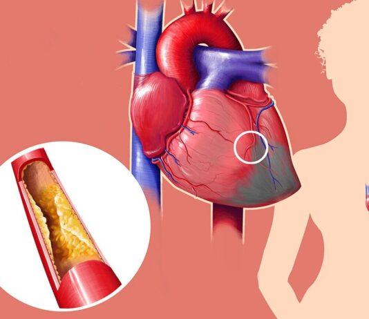 Cardione - cena - objednat - predaj - diskusia